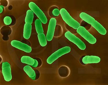 Aarchaebacteria