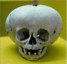 skull11